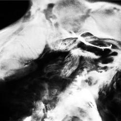 Saffronkeira - A New Life - 2CD DIGIPAK